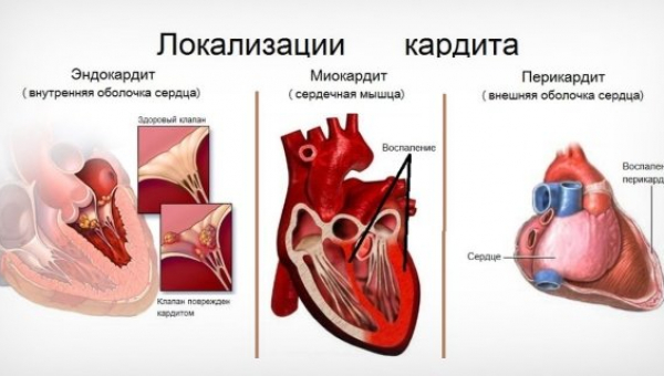 Кардиты. перикардиты. эндокардиты
