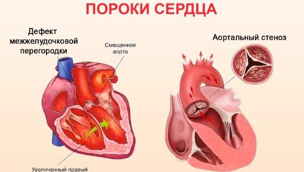 Порок сердца (приобретенный и врожденный)