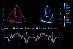 УЗИ сердца / Эхокардиография (ЭХОКГ)