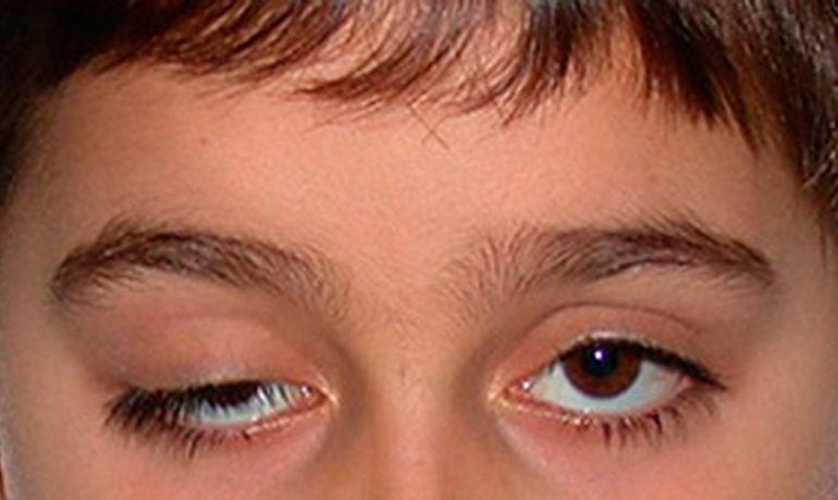 Птоз глаза