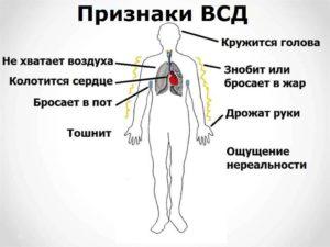 Вегетососудистая дистония
