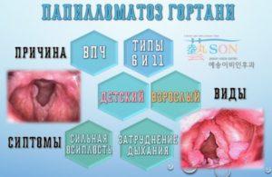 Папилломатоз гортани