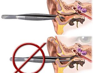 Инородные тела наружного слухового прохода