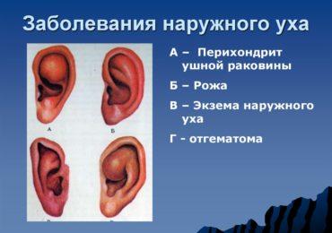 Воспалительные заболевания наружного уха