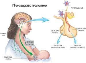 Гиперпролактинемия: симптоматика, причины