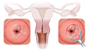ВПЧ-инфекция половых органов