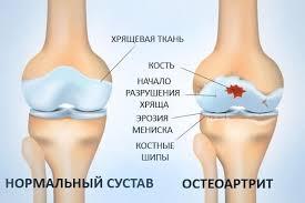 Остеоартрит