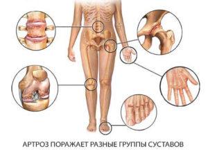 Артрит: причины. симптомы и лечение