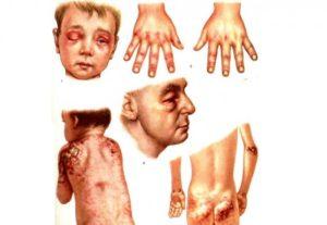 Дерматомиозит: лечение, симптомы