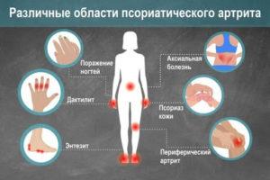 Артрит при воспалительных заболеваниях кишечника